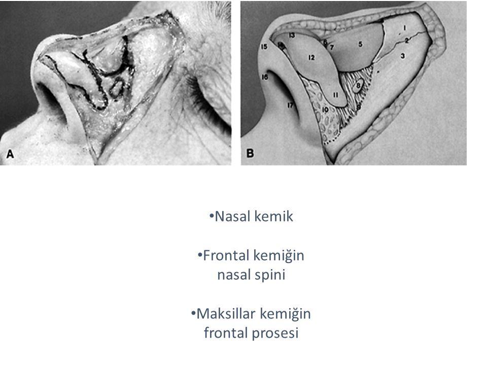 Frontal kemiğin nasal spini