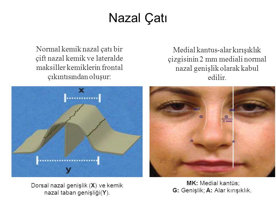Nazal Çatı Normal kemik nazal çatı bir