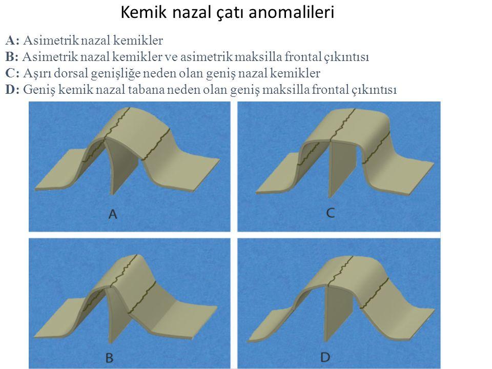 Kemik nazal çatı anomalileri