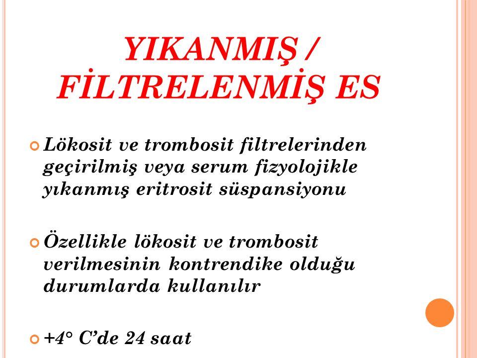 YIKANMIŞ / FİLTRELENMİŞ ES