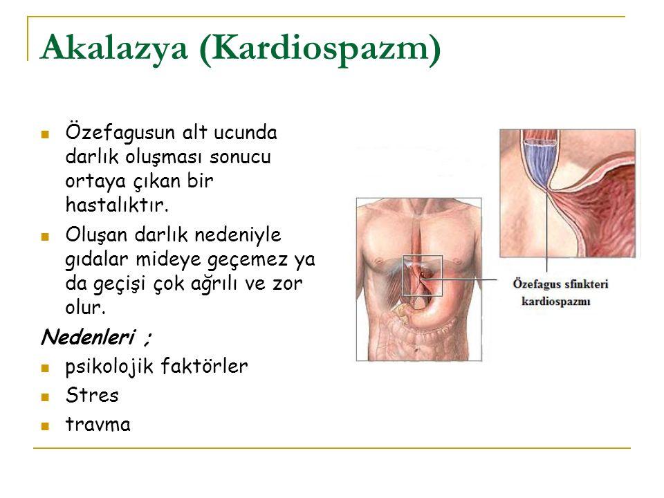Akalazya (Kardiospazm)