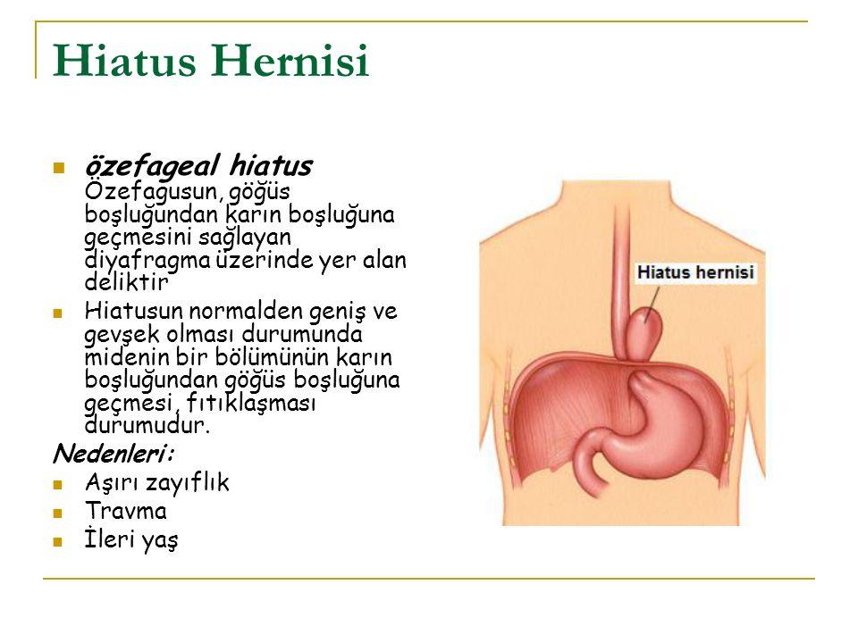 Hiatus Hernisi özefageal hiatus Özefagusun, göğüs boşluğundan karın boşluğuna geçmesini sağlayan diyafragma üzerinde yer alan deliktir.