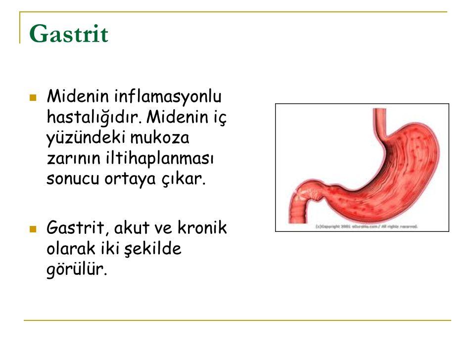 Gastrit Midenin inflamasyonlu hastalığıdır. Midenin iç yüzündeki mukoza zarının iltihaplanması sonucu ortaya çıkar.