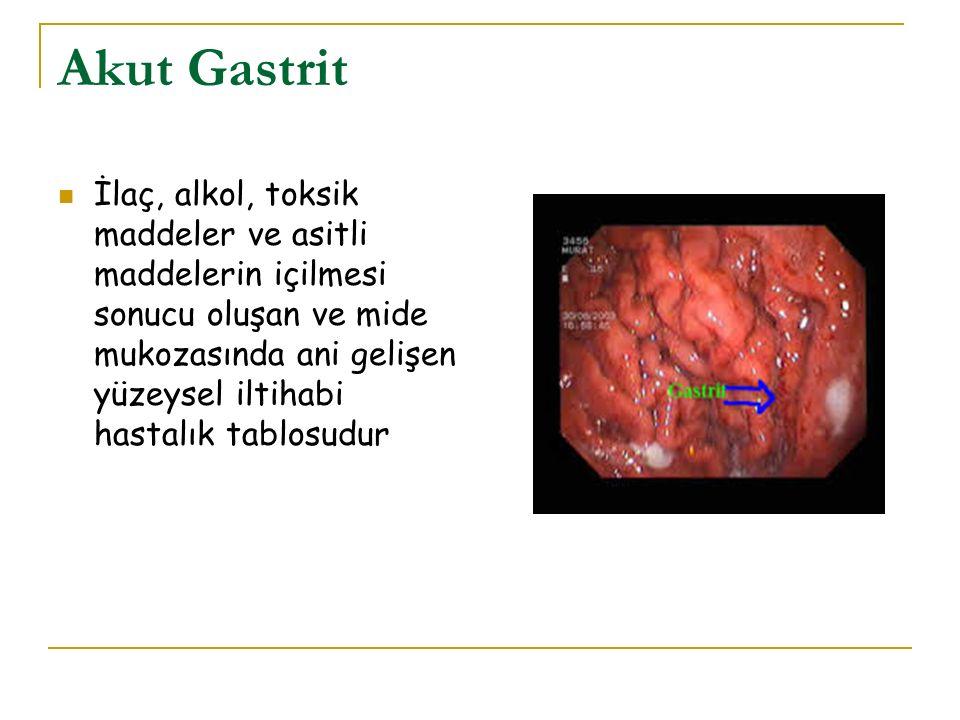 Akut Gastrit