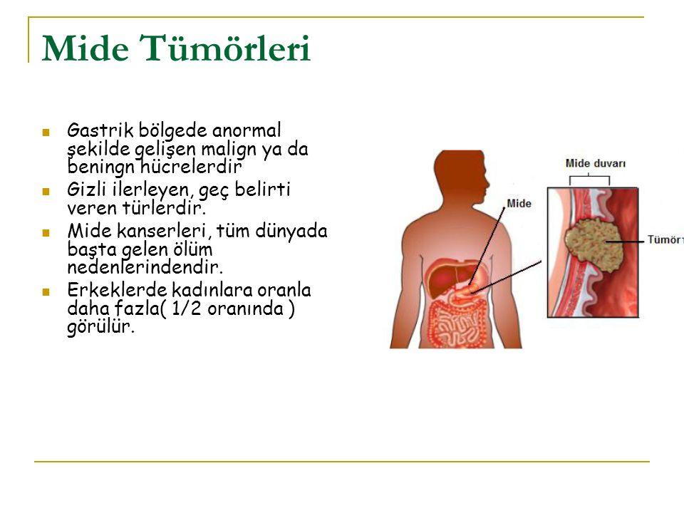 Mide Tümörleri Gastrik bölgede anormal şekilde gelişen malign ya da beningn hücrelerdir. Gizli ilerleyen, geç belirti veren türlerdir.