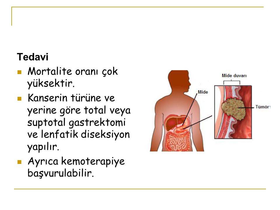 Tedavi Mortalite oranı çok yüksektir. Kanserin türüne ve yerine göre total veya suptotal gastrektomi ve lenfatik diseksiyon yapılır.