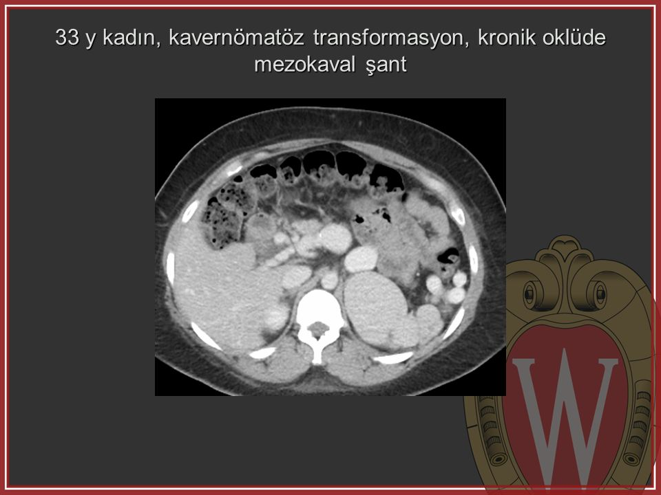 33 y kadın, kavernömatöz transformasyon, kronik oklüde mezokaval şant