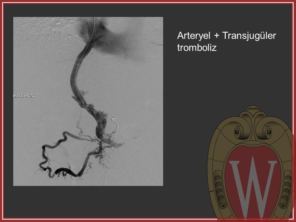 Arteryel + Transjugüler tromboliz