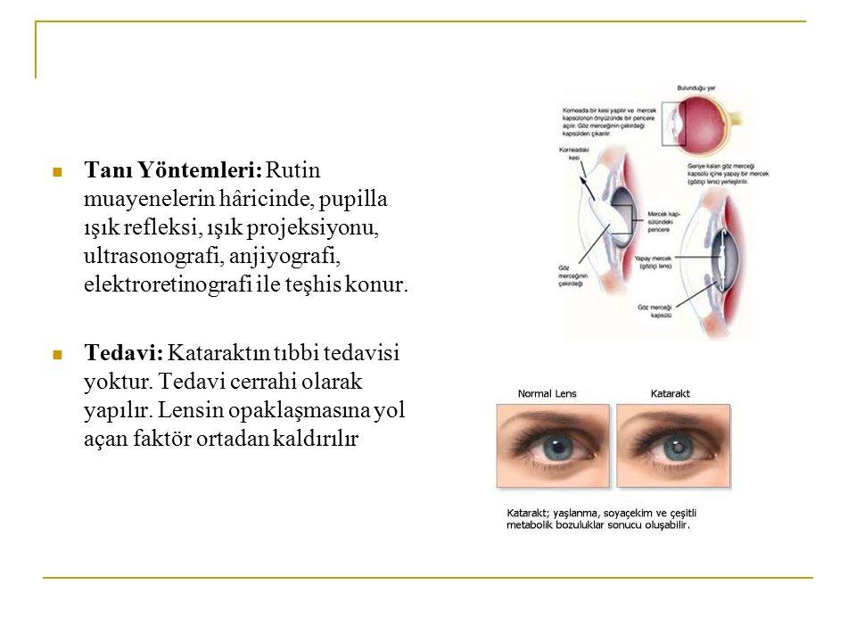 Tanı Yöntemleri: Rutin muayenelerin hâricinde, pupilla ışık refleksi, ışık projeksiyonu, ultrasonografi, anjiyografi, elektroretinografi ile teşhis konur.