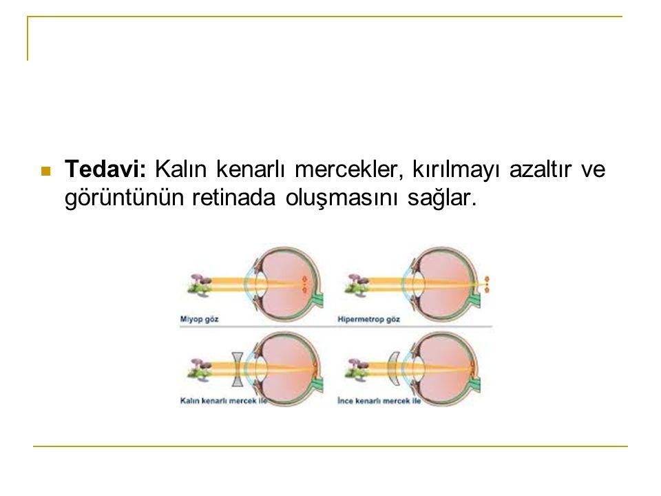 Tedavi: Kalın kenarlı mercekler, kırılmayı azaltır ve görüntünün retinada oluşmasını sağlar.