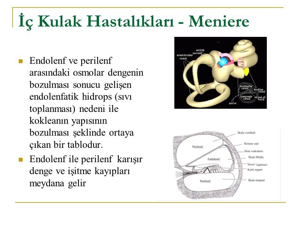 İç Kulak Hastalıkları - Meniere
