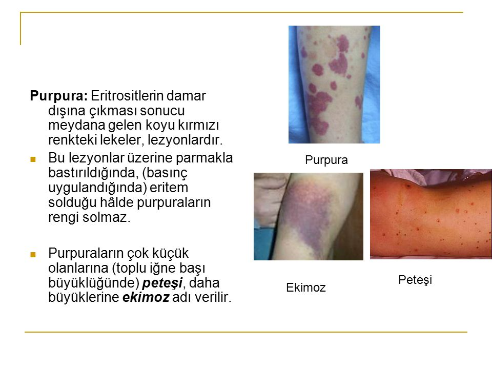 Purpura: Eritrositlerin damar dışına çıkması sonucu meydana gelen koyu kırmızı renkteki lekeler, lezyonlardır.