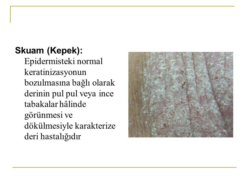 Skuam (Kepek): Epidermisteki normal keratinizasyonun bozulmasına bağlı olarak derinin pul pul veya ince tabakalar hâlinde görünmesi ve dökülmesiyle karakterize deri hastalığıdır