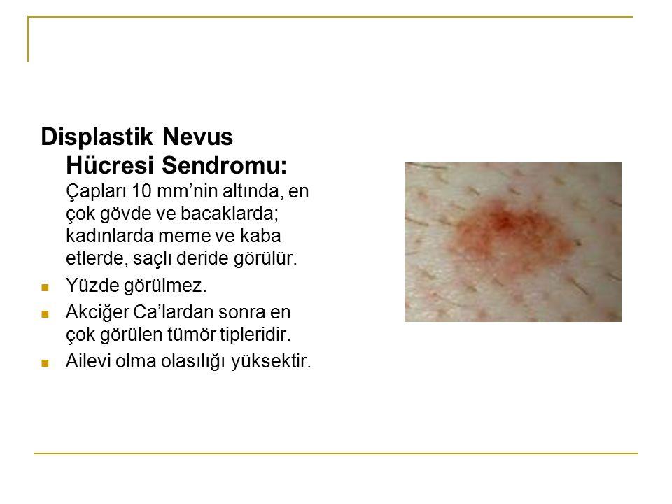 Displastik Nevus Hücresi Sendromu: Çapları 10 mm'nin altında, en çok gövde ve bacaklarda; kadınlarda meme ve kaba etlerde, saçlı deride görülür.