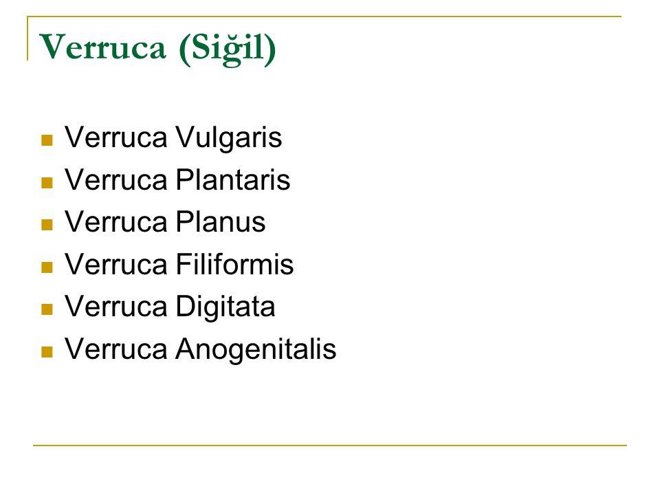 Verruca (Siğil) Verruca Vulgaris Verruca Plantaris Verruca Planus