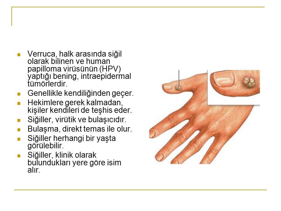 Verruca, halk arasında siğil olarak bilinen ve human papilloma virüsünün (HPV) yaptığı bening, intraepidermal tümörlerdir.