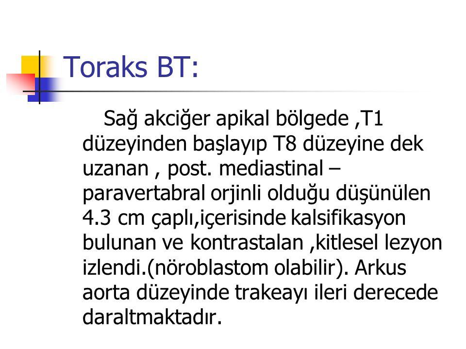 Toraks BT: