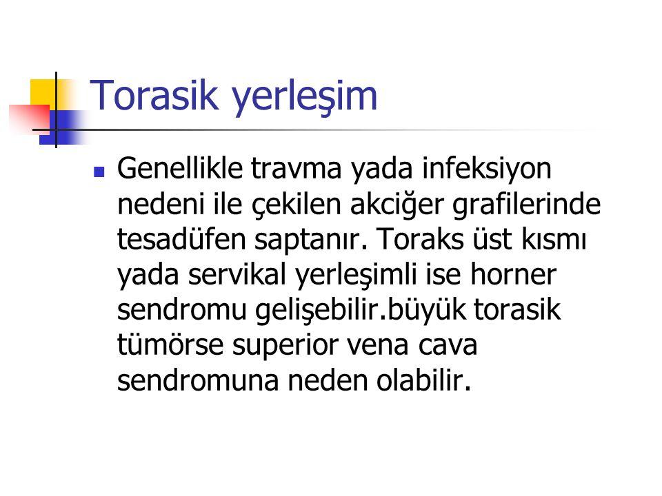 Torasik yerleşim