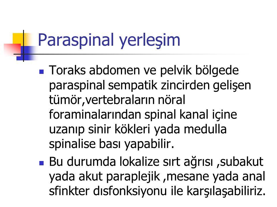 Paraspinal yerleşim