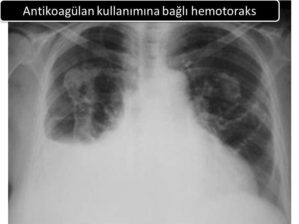 Antikoagülan kullanımına bağlı hemotoraks