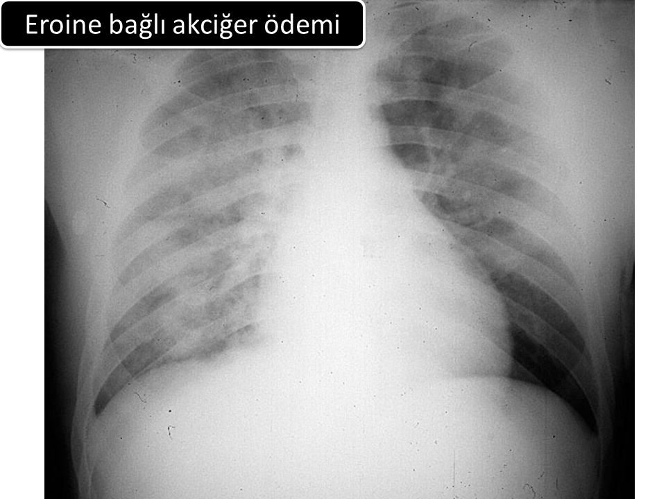 Eroine bağlı akciğer ödemi