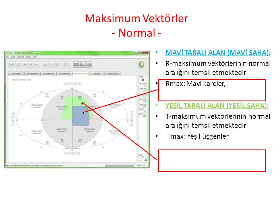 Maksimum Vektörler - Normal -