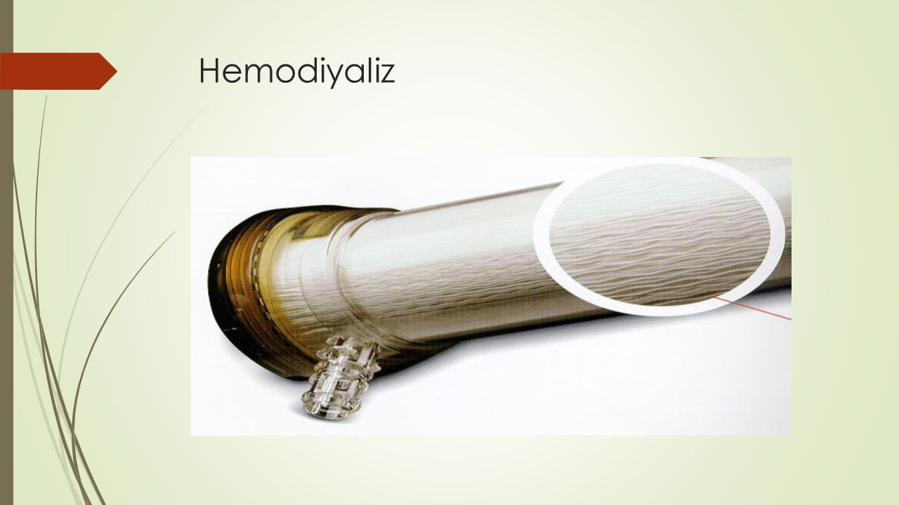 Hemodiyaliz