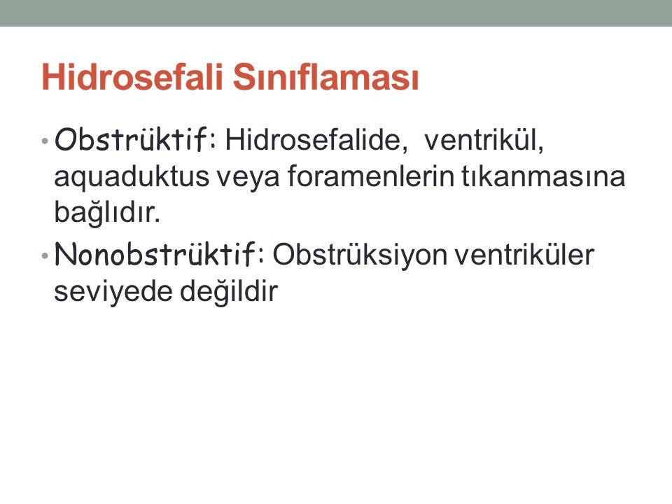 Hidrosefali Sınıflaması
