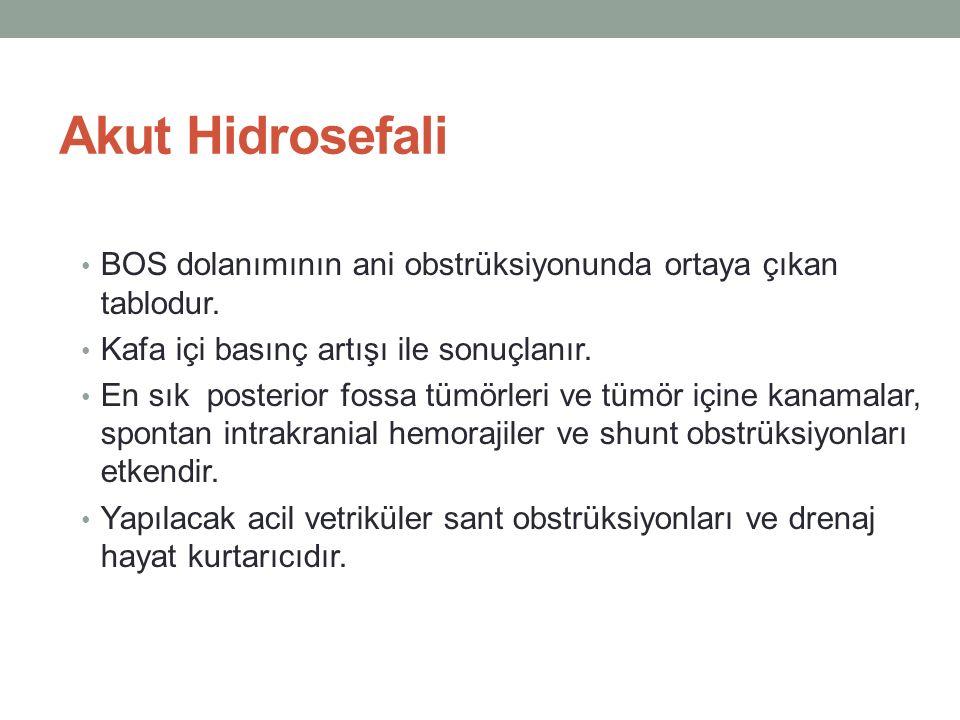 Akut Hidrosefali BOS dolanımının ani obstrüksiyonunda ortaya çıkan tablodur. Kafa içi basınç artışı ile sonuçlanır.