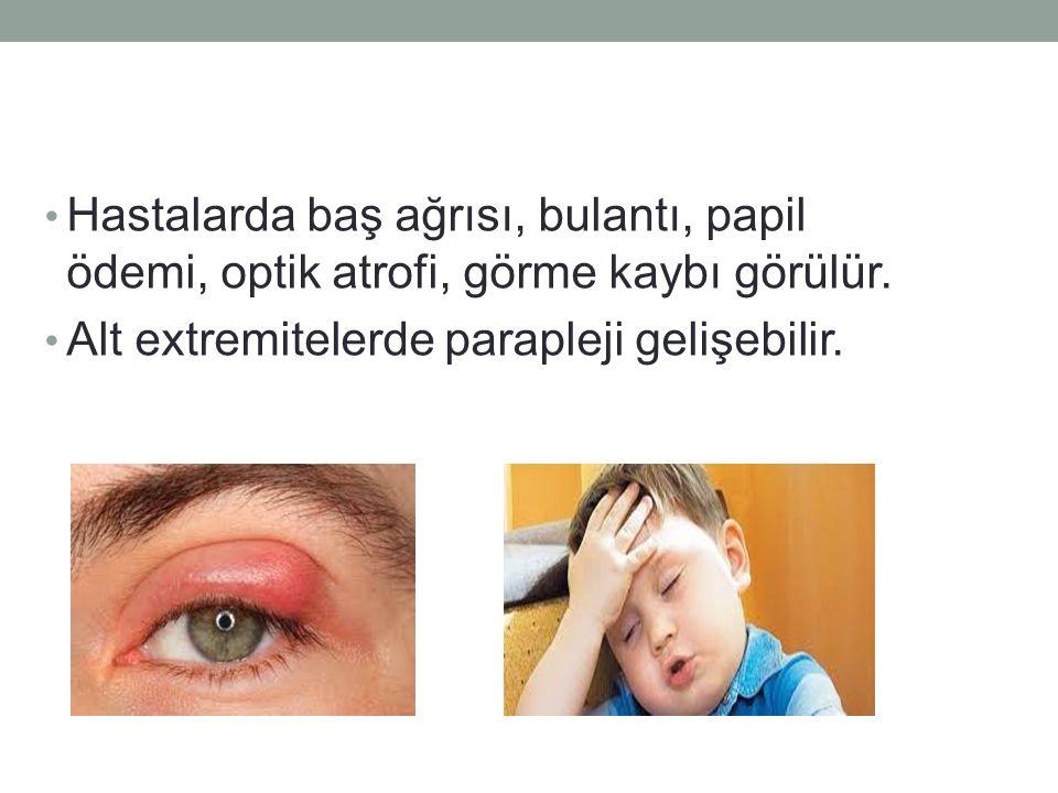 Hastalarda baş ağrısı, bulantı, papil ödemi, optik atrofi, görme kaybı görülür.