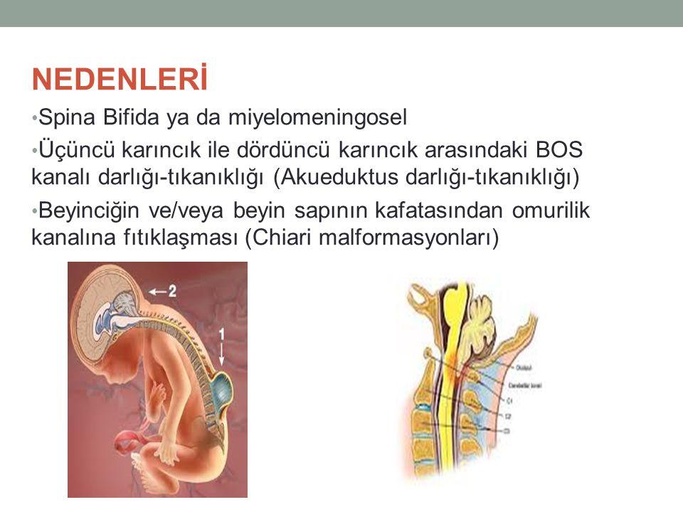 NEDENLERİ Spina Bifida ya da miyelomeningosel