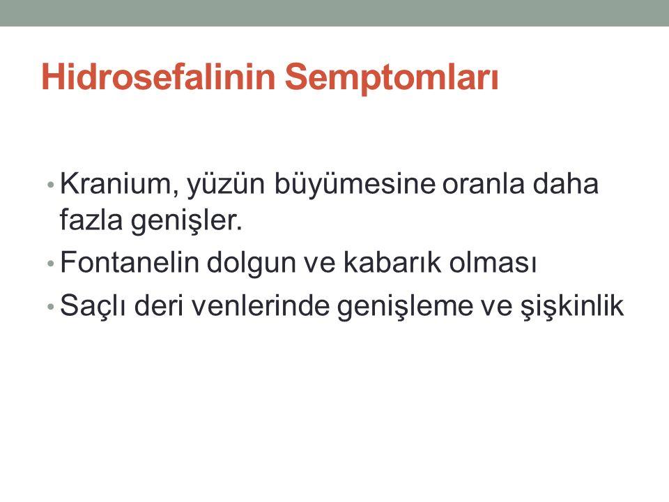 Hidrosefalinin Semptomları