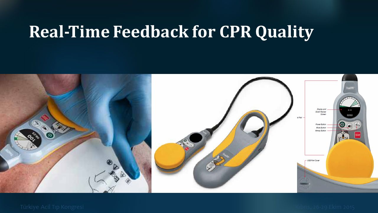 Real‐Time Feedback for CPR Quality