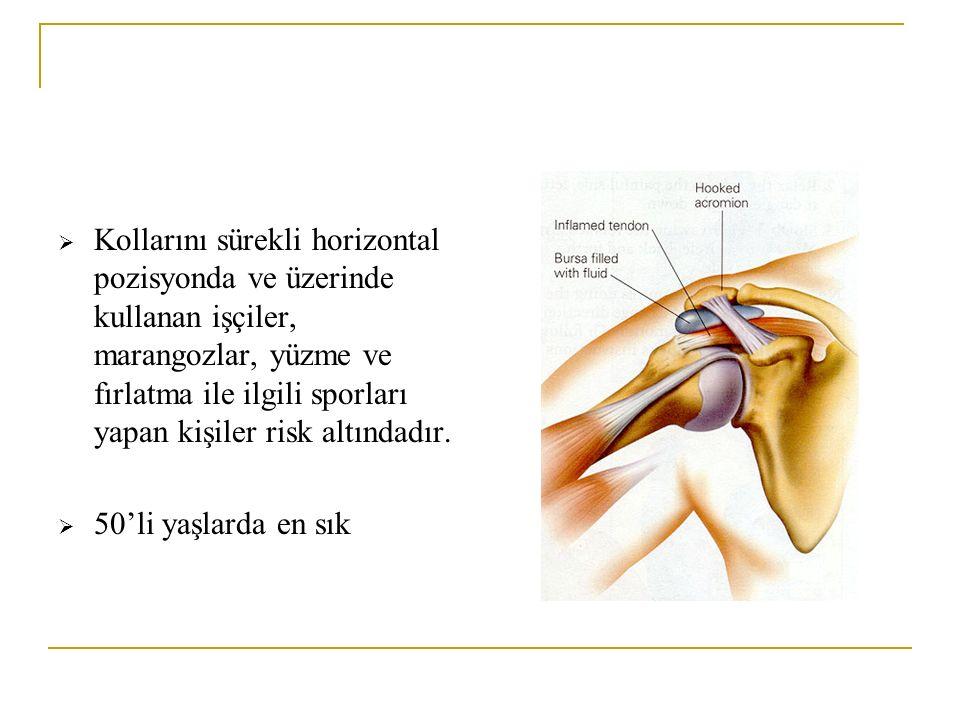 Kollarını sürekli horizontal pozisyonda ve üzerinde kullanan işçiler, marangozlar, yüzme ve fırlatma ile ilgili sporları yapan kişiler risk altındadır.