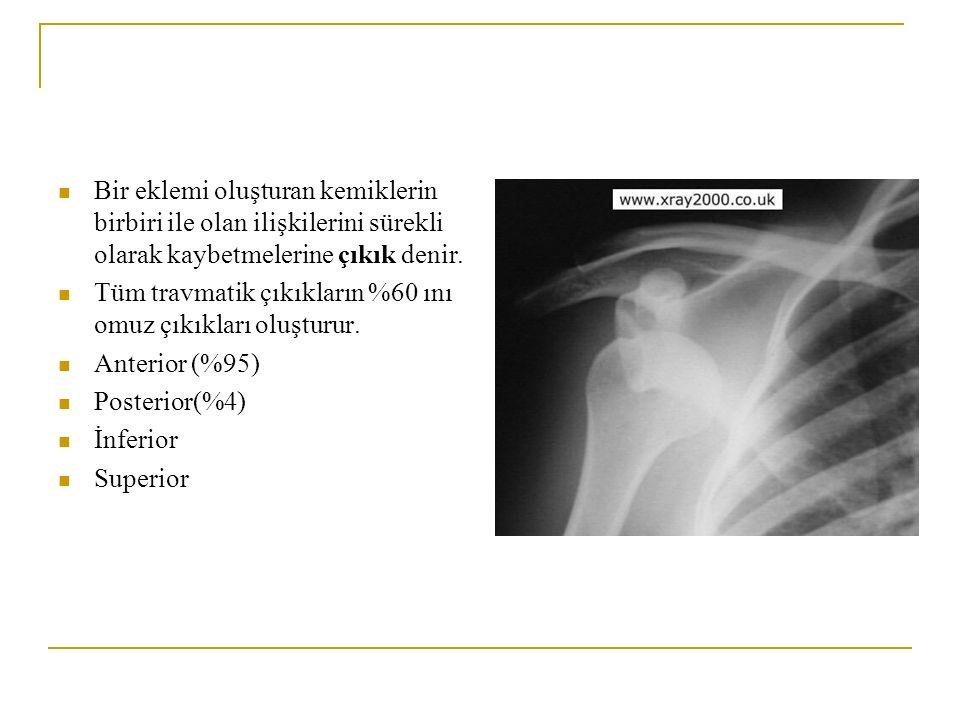Bir eklemi oluşturan kemiklerin birbiri ile olan ilişkilerini sürekli olarak kaybetmelerine çıkık denir.