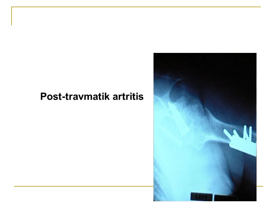 Post-travmatik artritis