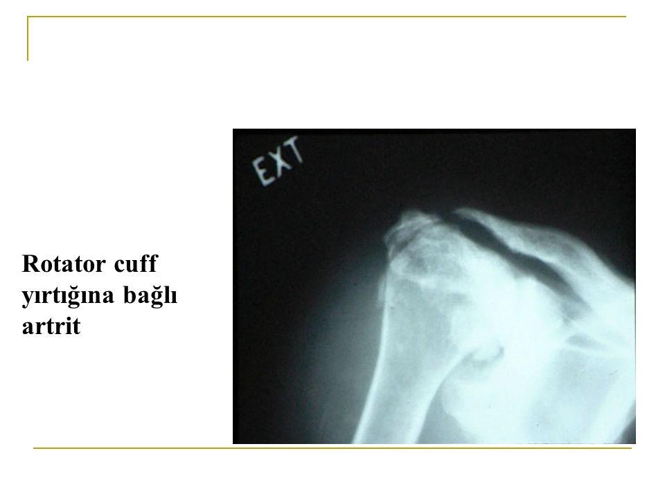 Rotator cuff yırtığına bağlı artrit