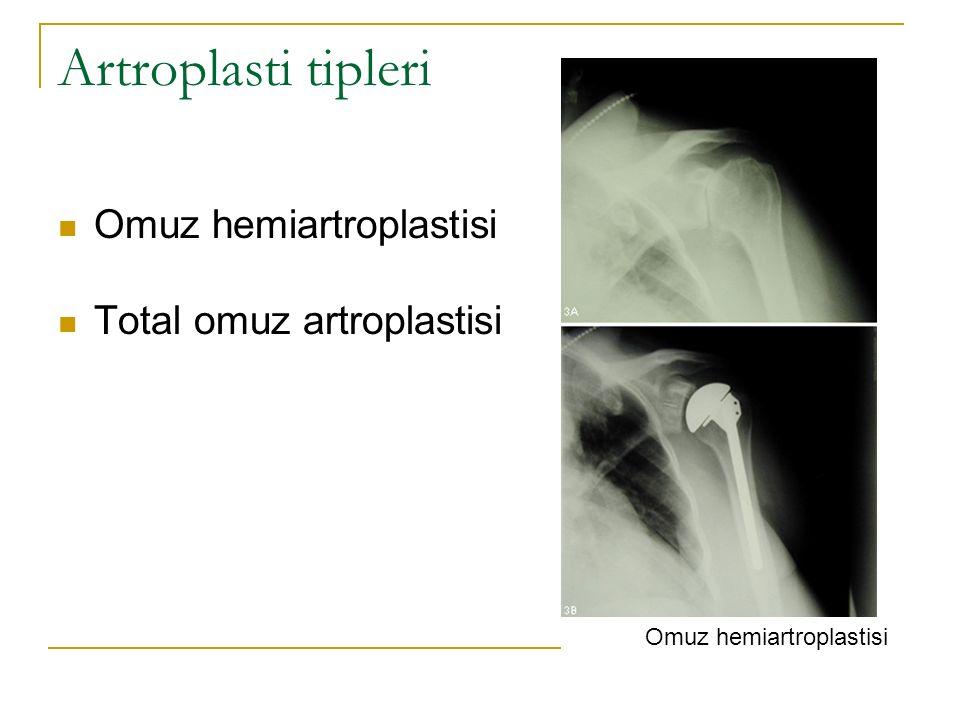 Omuz hemiartroplastisi
