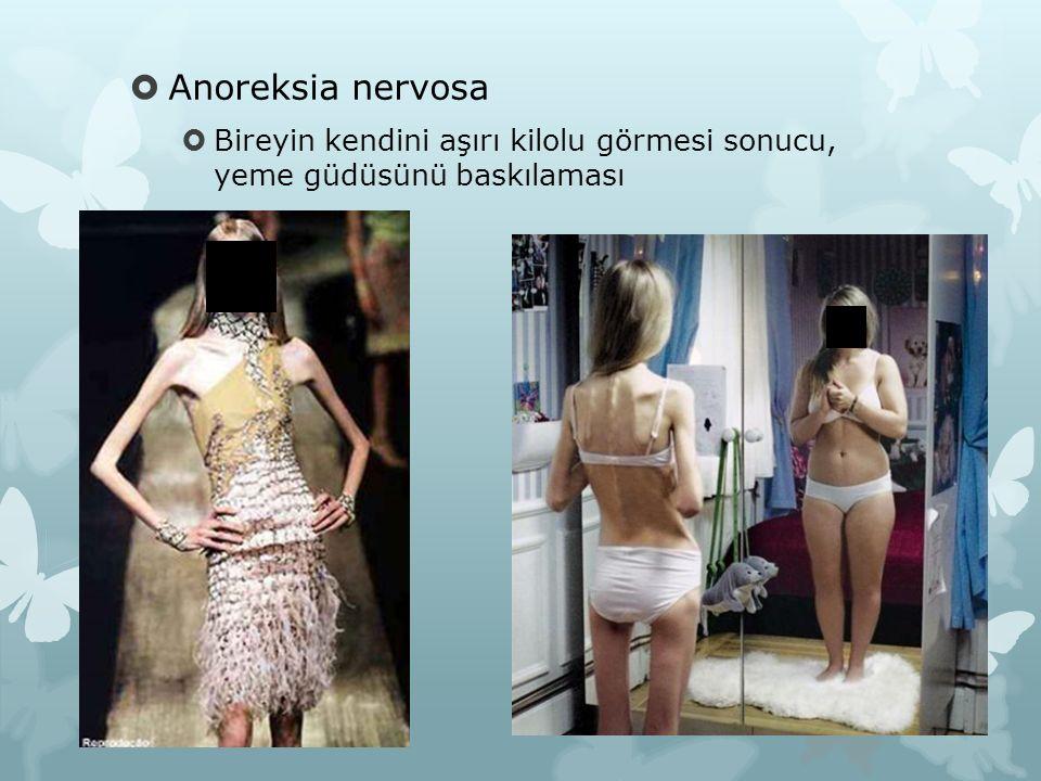 Anoreksia nervosa Bireyin kendini aşırı kilolu görmesi sonucu, yeme güdüsünü baskılaması