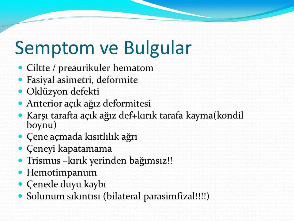 Semptom ve Bulgular Ciltte / preaurikuler hematom