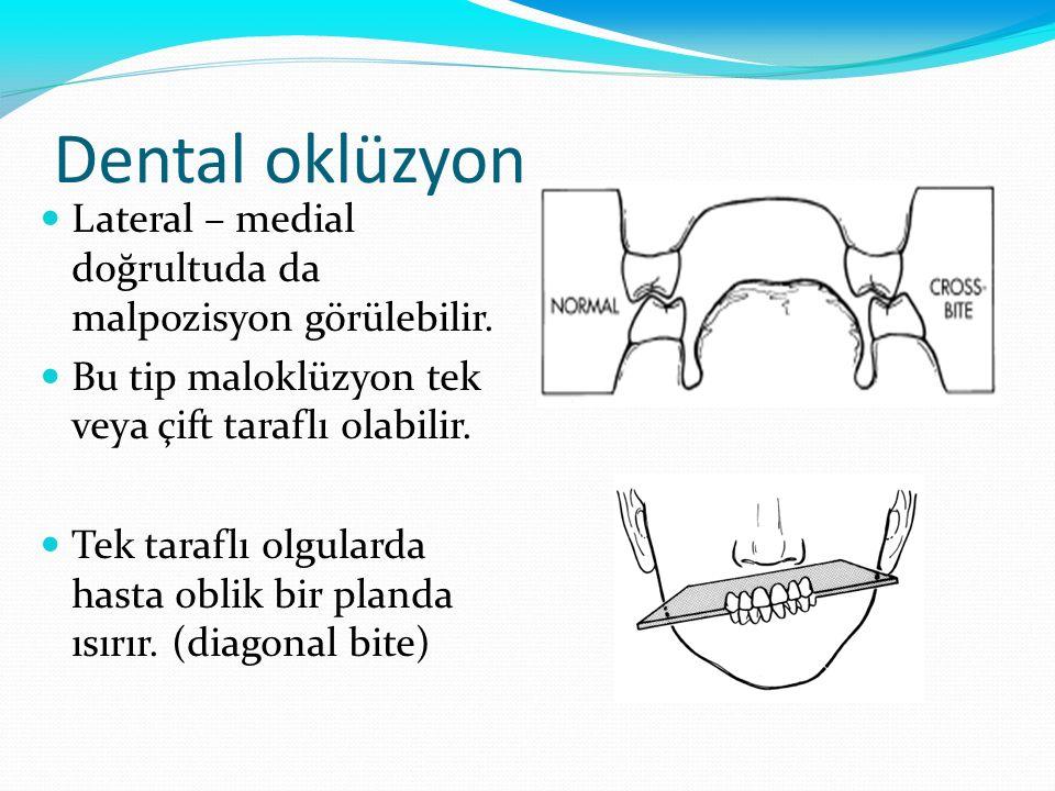 Dental oklüzyon Lateral – medial doğrultuda da malpozisyon görülebilir. Bu tip maloklüzyon tek veya çift taraflı olabilir.