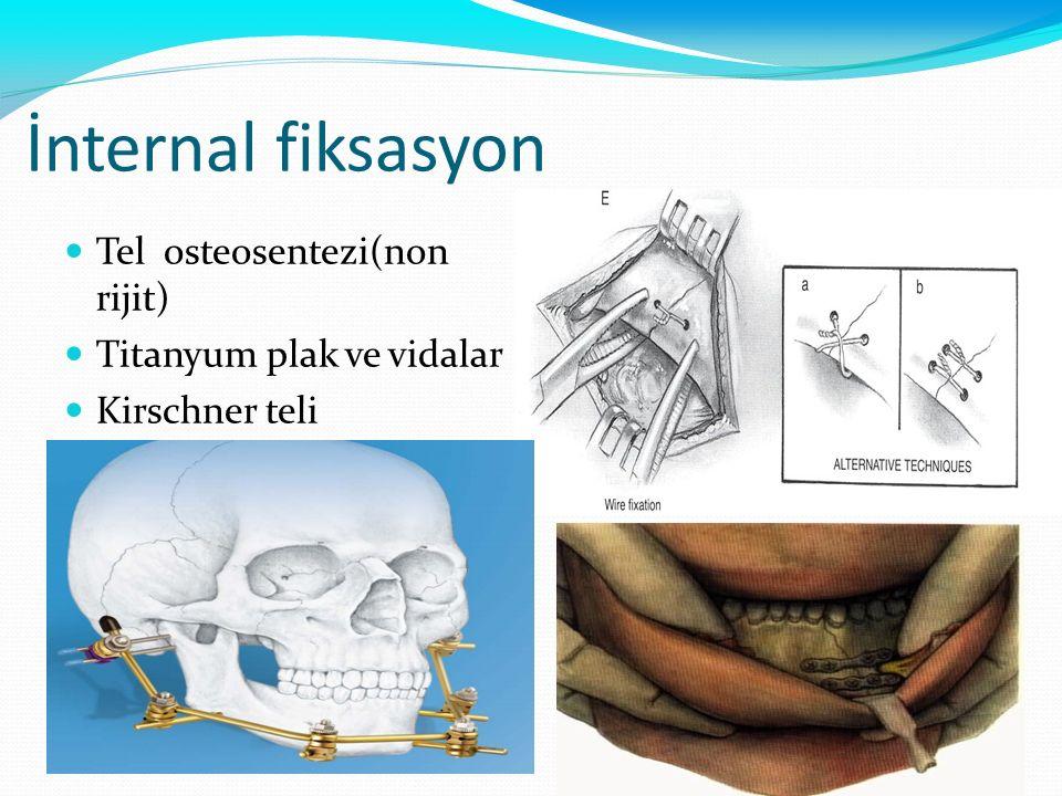 İnternal fiksasyon Tel osteosentezi(non rijit)