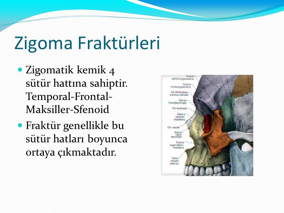 Zigoma Fraktürleri Zigomatik kemik 4 sütür hattına sahiptir. Temporal-Frontal- Maksiller-Sfenoid.