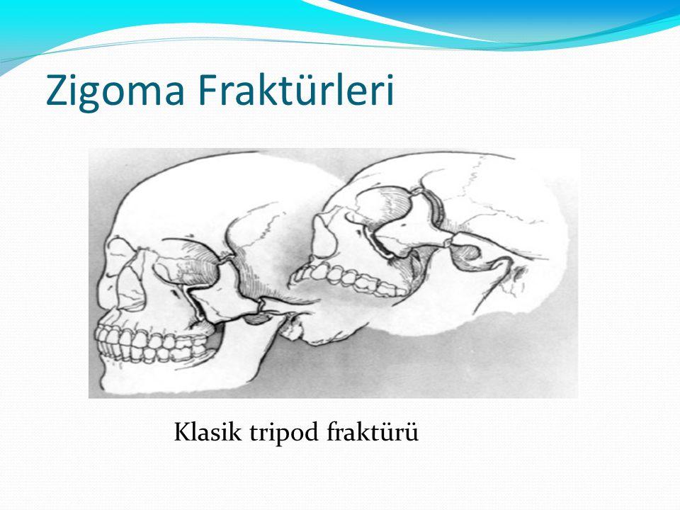 Zigoma Fraktürleri Klasik tripod fraktürü