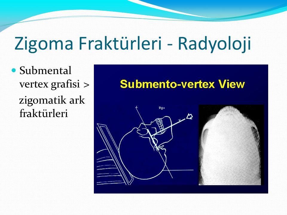 Zigoma Fraktürleri - Radyoloji