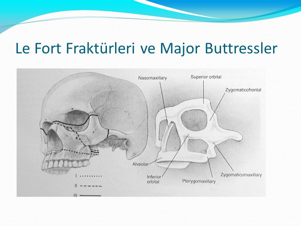 Le Fort Fraktürleri ve Major Buttressler