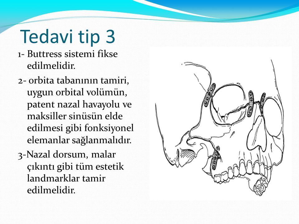 Tedavi tip 3 1- Buttress sistemi fikse edilmelidir.