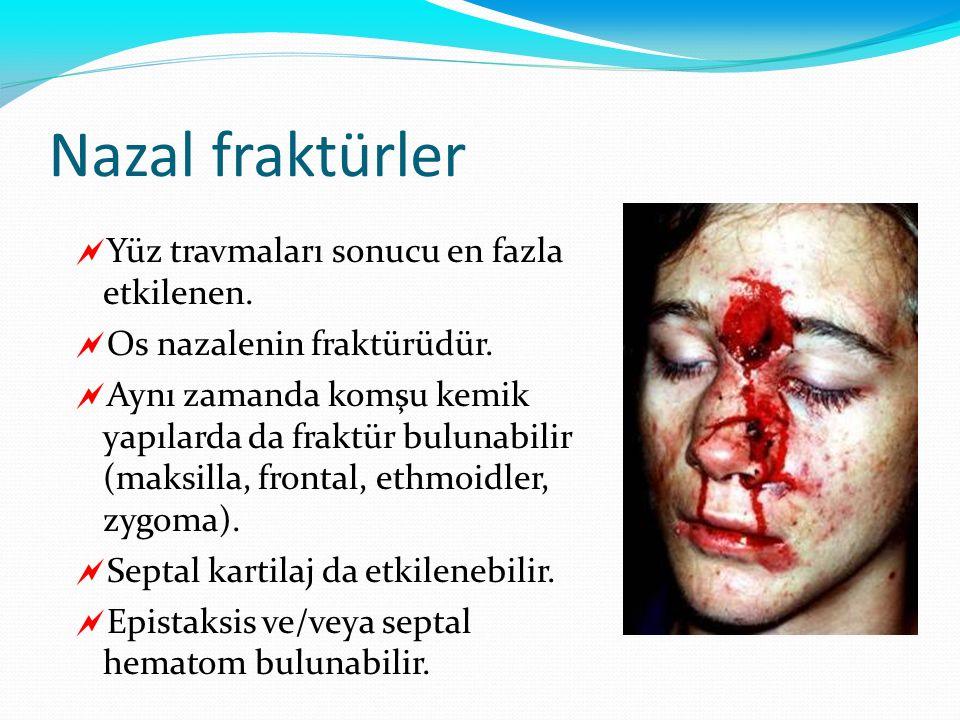 Nazal fraktürler Yüz travmaları sonucu en fazla etkilenen.