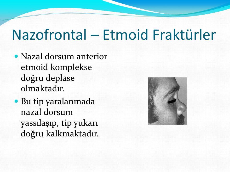 Nazofrontal – Etmoid Fraktürler