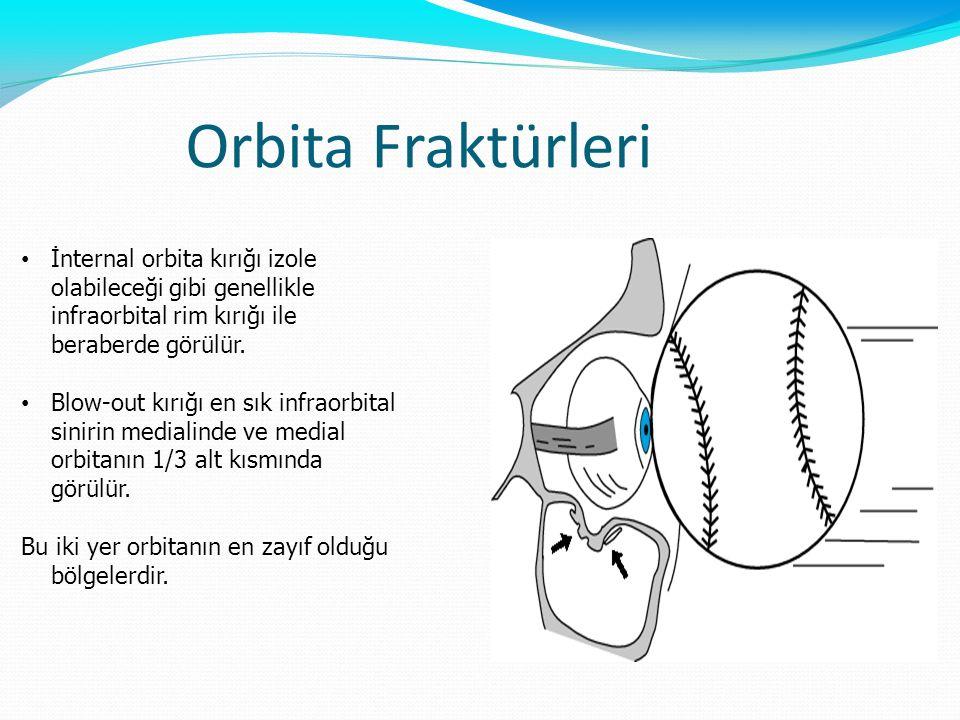 Orbita Fraktürleri İnternal orbita kırığı izole olabileceği gibi genellikle infraorbital rim kırığı ile beraberde görülür.